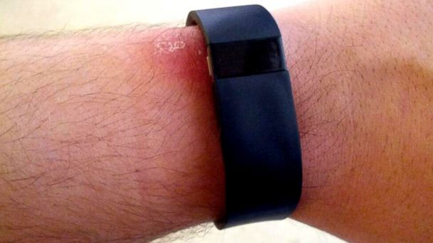 "Photo of Scandal in jurul Fitbit: compania promoveaza produse ""sigure"", consumatorii populeaza cabinetele medicale"