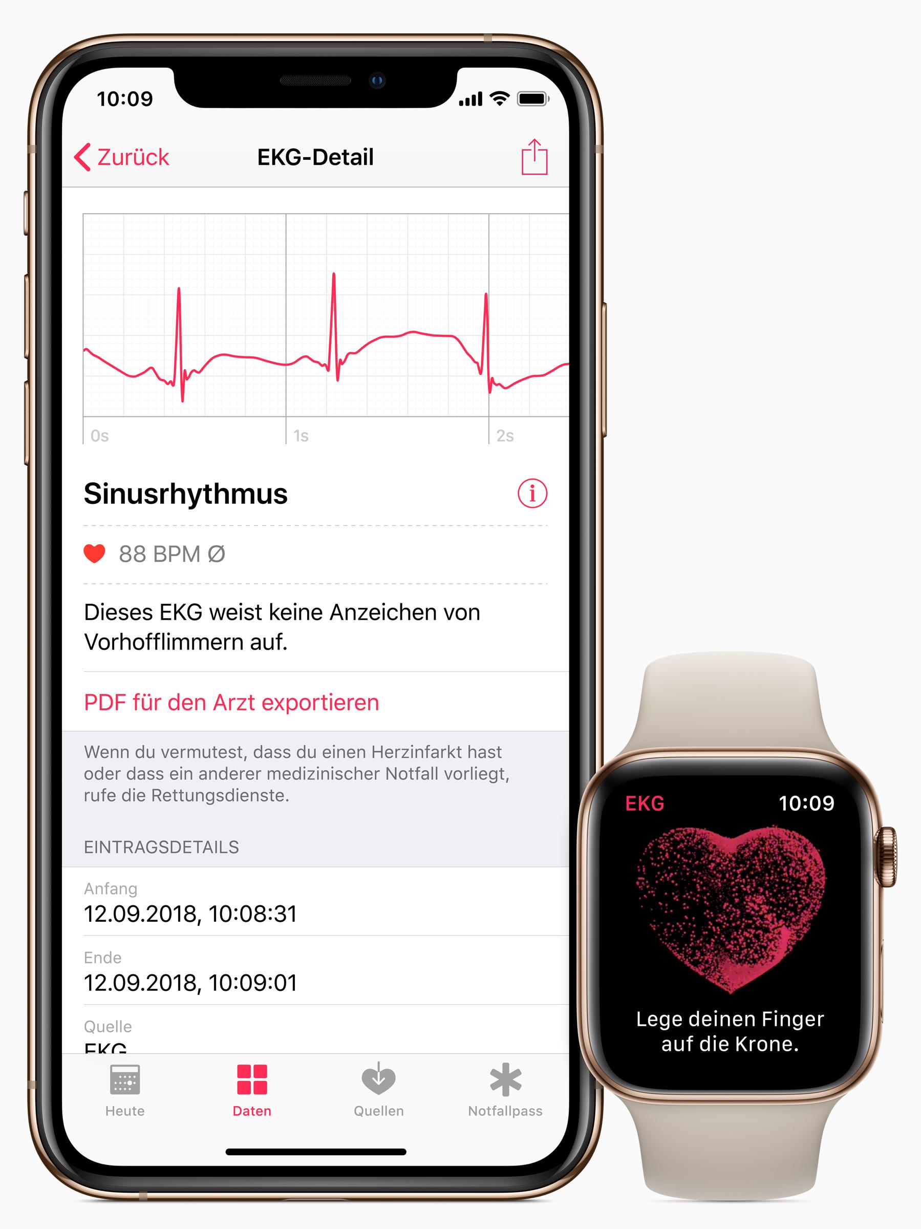Photo of Funcția ECG a lui Apple Watch este acum disponibilă și în România
